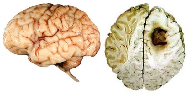 Как влияет курение влияет на мозг (внимание)