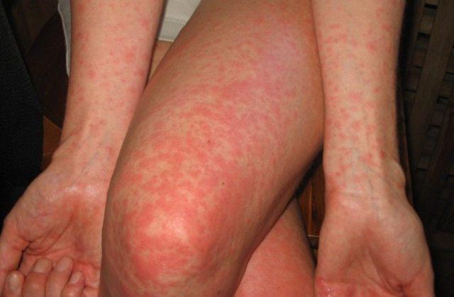 Нервный дерматит: крапивница на нервной почве, аллергия и сыпь от стресса на коже, как лечить