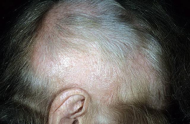 Выпадают волосы от стресса: через какое время и что делать