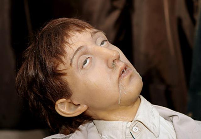 Токсикомания: что такое, последствия, лечение зависимости