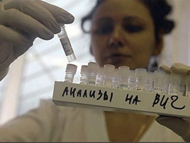 СПИДофобия (боязнь заразиться): симптомы как у ВИЧ, как бороться