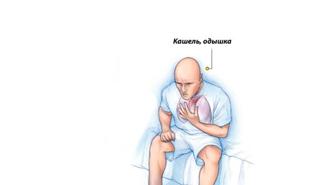 Зависимость от препарата «Феназепам»: симптомы, привыкание, как снять ломку