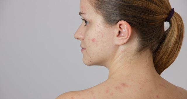 Прыщи от стресса на лице: как выглядят, могут ли появляться, как лечить