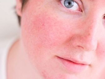 Эритрофобия: лечение в домашних условиях, что такое, лекарства